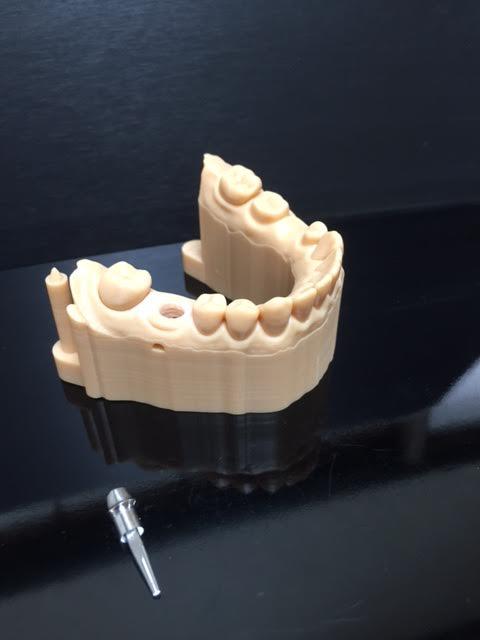 3Dプリンター模型